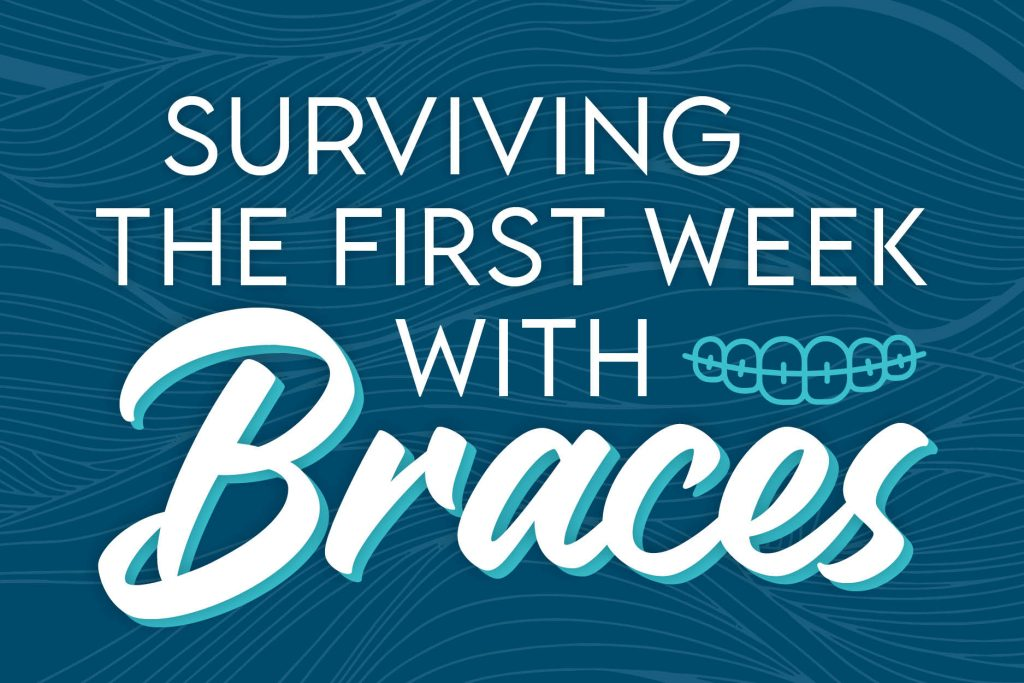 What to expect during your first week of braces